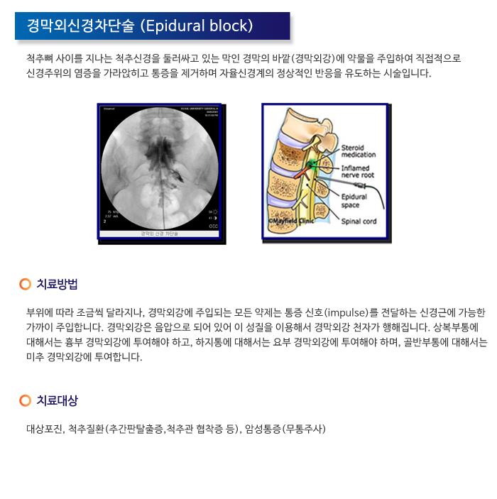 경막외신경차단술.jpg