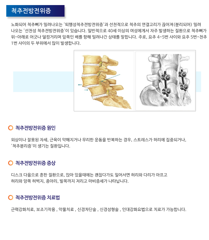 척추질환2_척추전방전위증.jpg